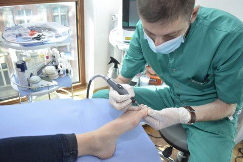 MEHANIČKA ABRAZIJA NOKTIJU 101 Foot Clinic