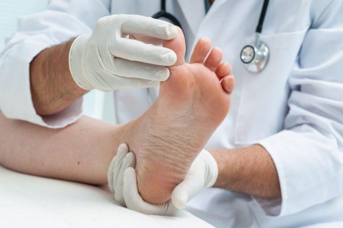 Габичната инфекција на стапала не ја лекувајте сами