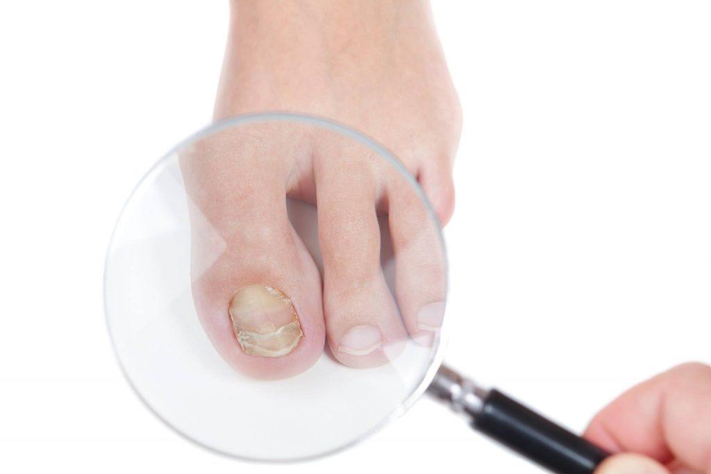 Најчести болести на ноктите