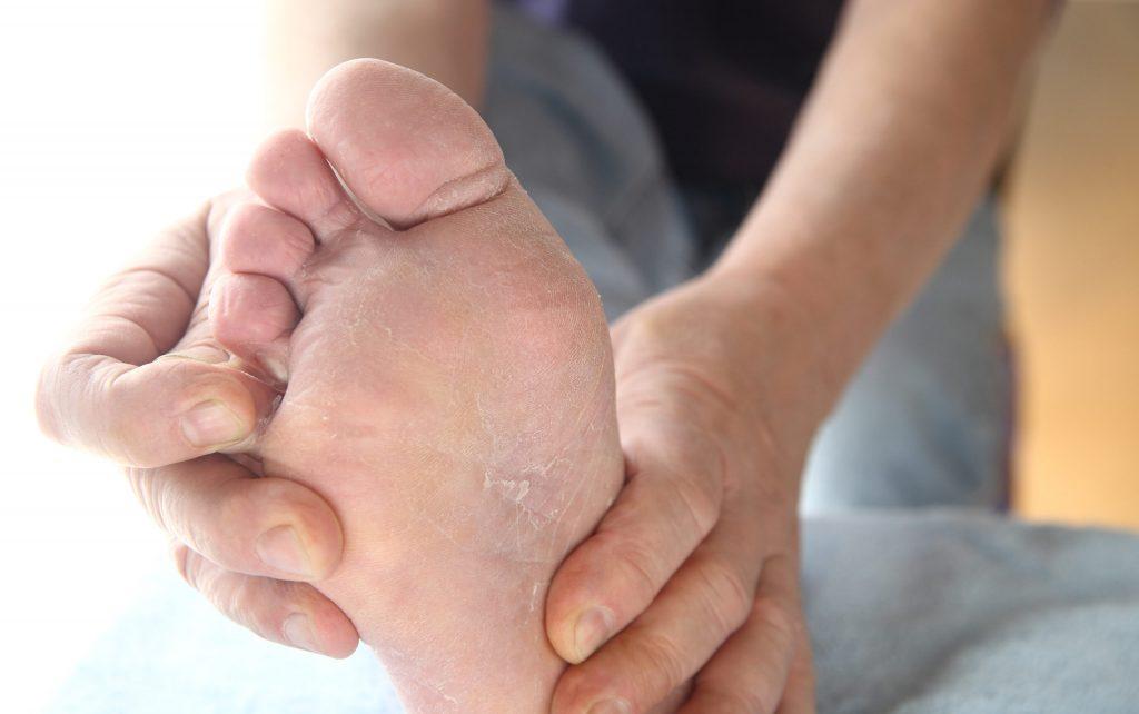 Атлетско стапало – упорни габички кои не ви даваат мир