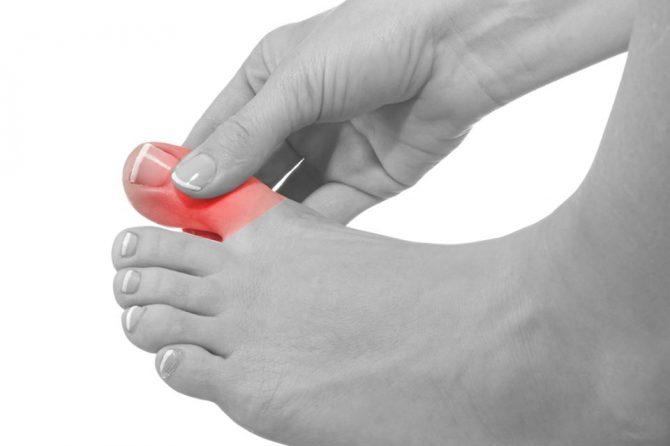 Враснат нокт – зошто се појавува и како се третира