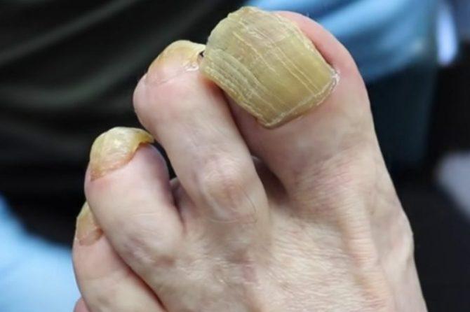 Задебелување на ноктите – на што не предупредува