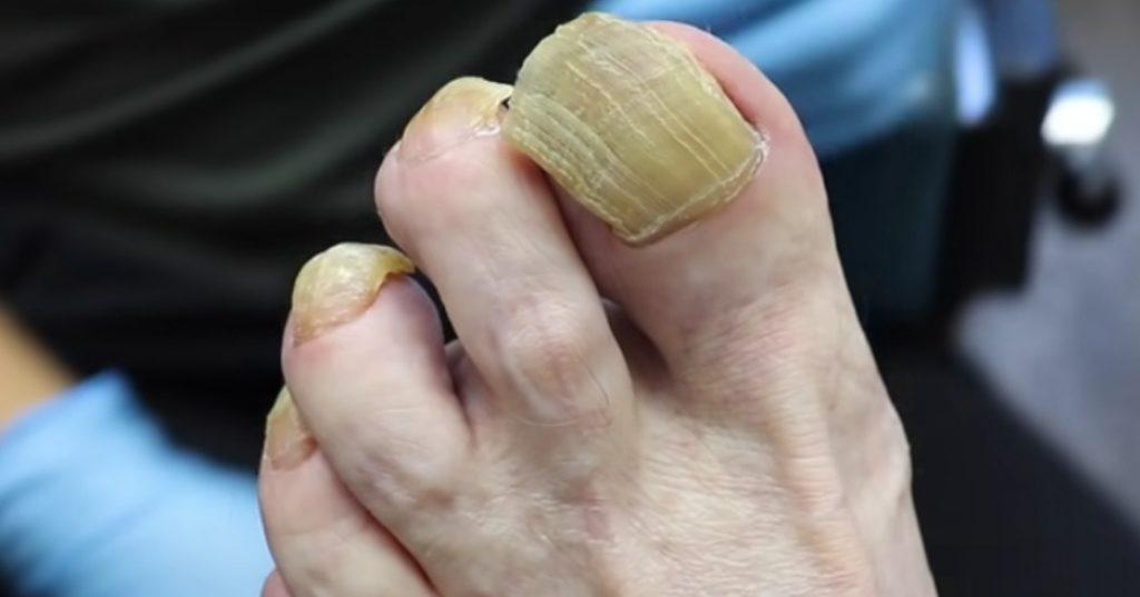Задебелување на ноктите